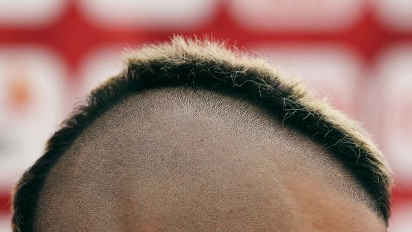 """""""秃头青年""""有救了?3D打印技术或成脱发""""救星"""""""